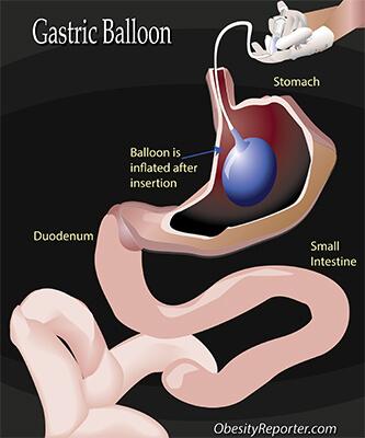 Gastric Balloon Surgery, technical illustration