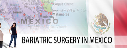 Mexico Bariatric Surgery Center