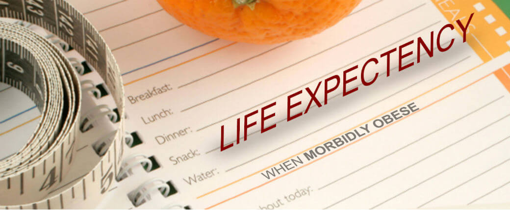 Life Expectancy When Morbidly Obese