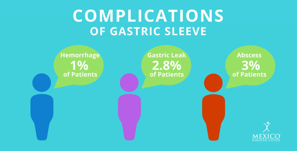 Complications of Gastric Sleeve Surgery