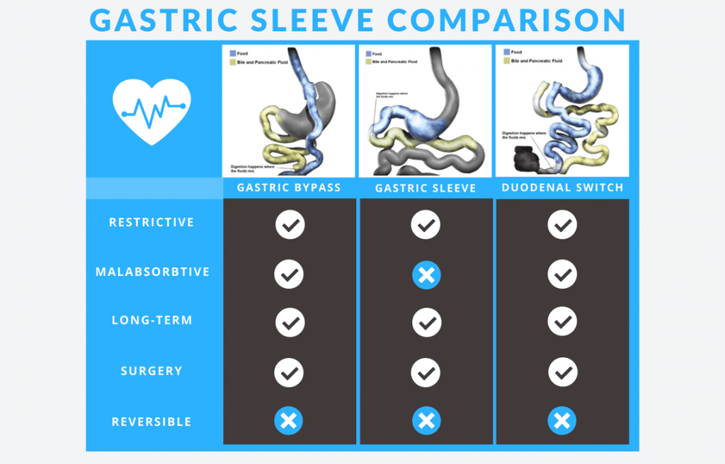 Gastric Sleeve Comparison Infographic