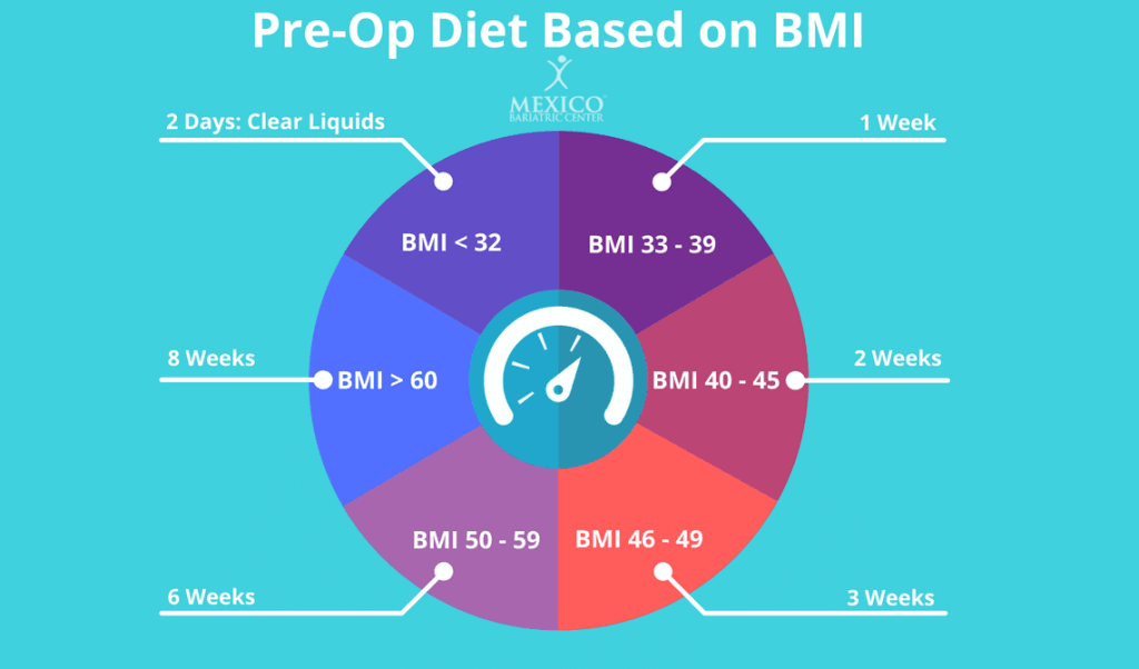 Gastric Sleeve Pre Op Diet Requirements