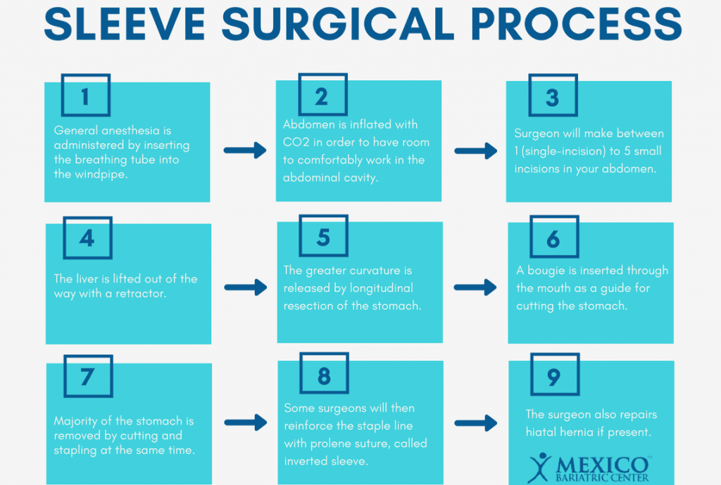 Gastric Sleeve Surgical Process