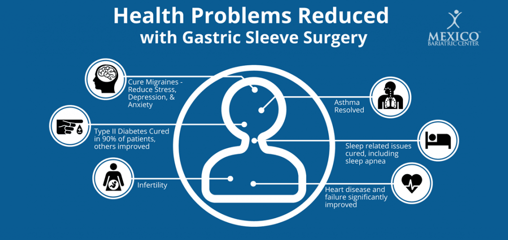 Health Benefits of Gastric Sleeve Surgery