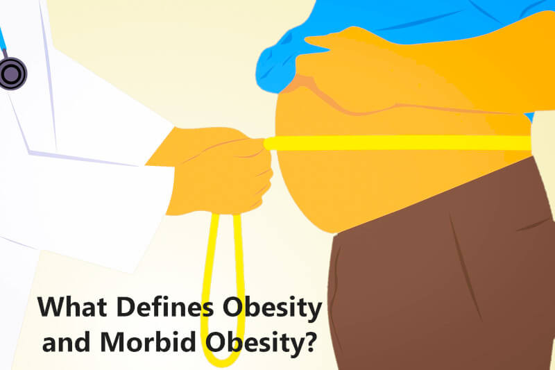 What Defines Obesity and Morbid Obesity - COVID-19 Risk Factors