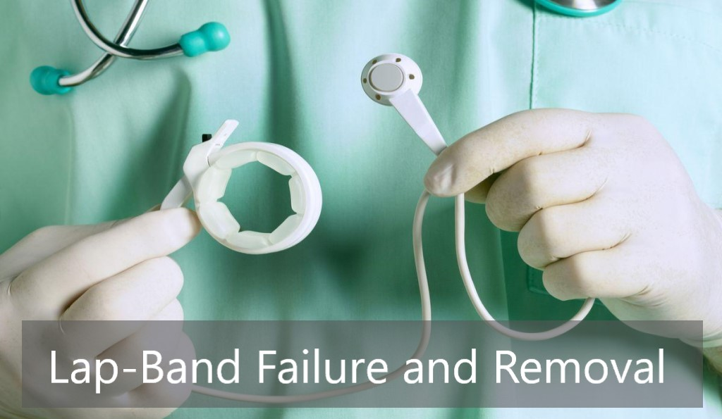 Lap-Band Failure and Removal