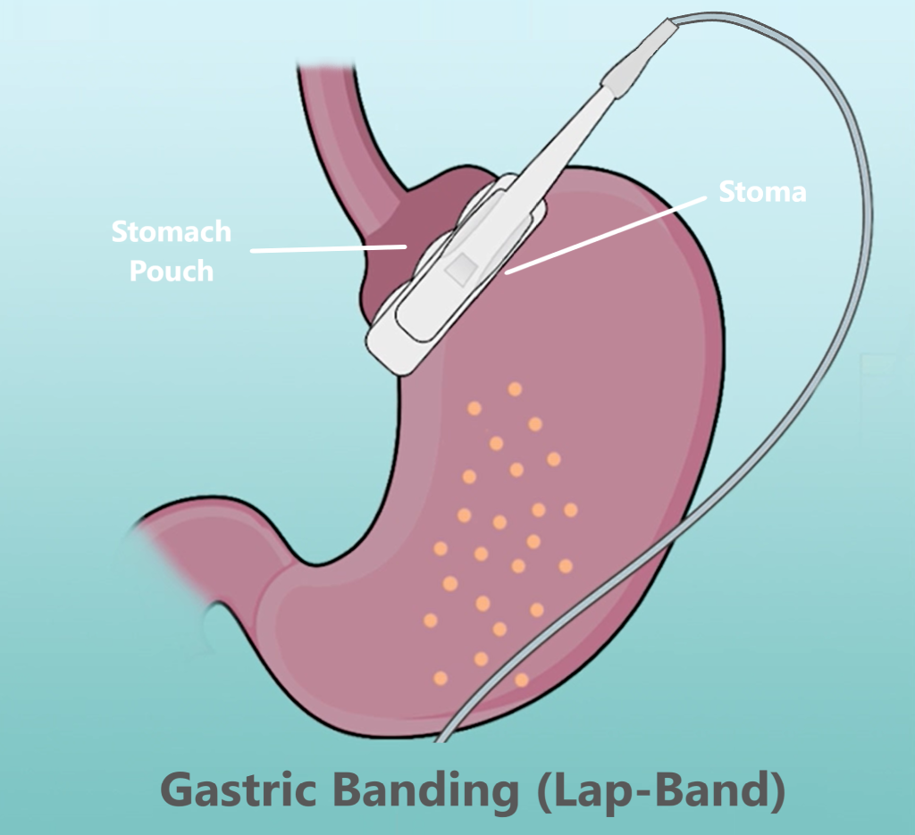 gastric banding - Lap Band food track
