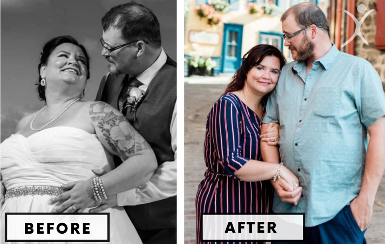 better fit than fat couple - weight loss surgery