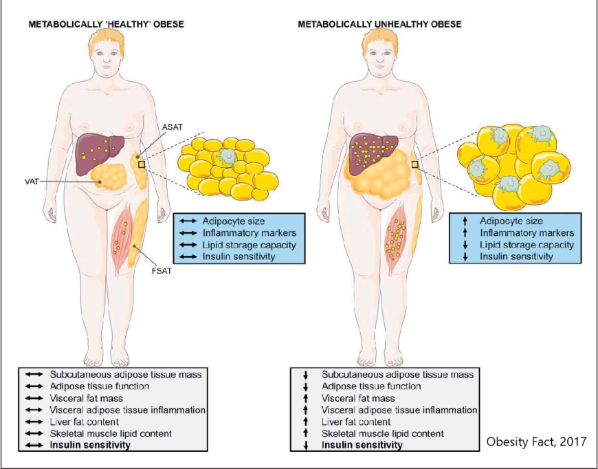 metabolically healthy obese vs metabolically unhealthy obese