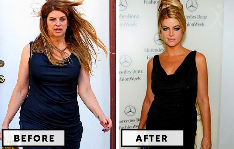 Kirstie Alley Weight Loss - Celebrity Weight Loss Photo